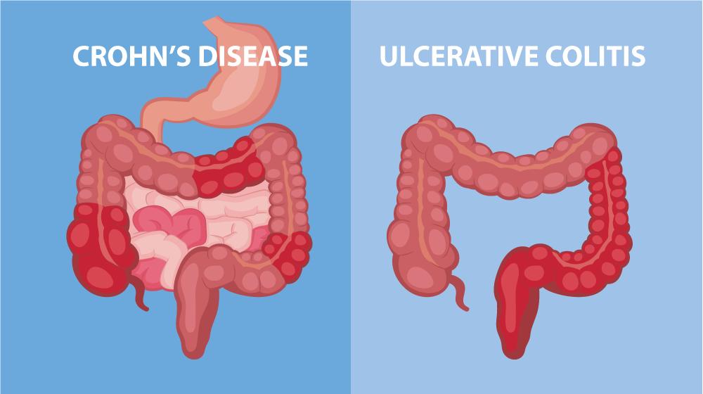 chrohns disease scientific illustration